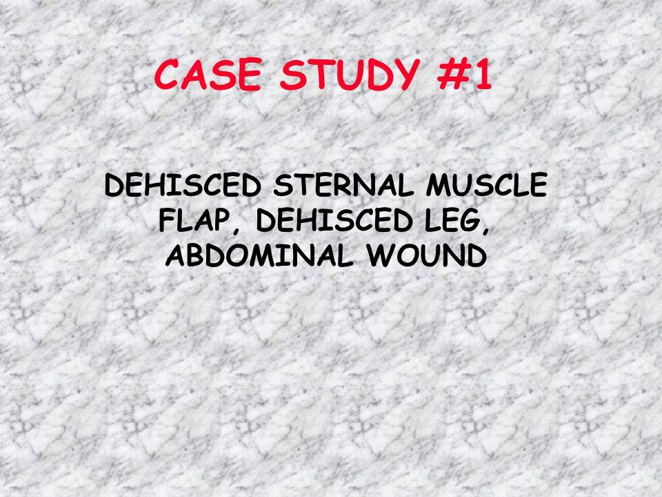 CASE STUDY #1 DEHISCED STERNAL MUSCLE FLAP, DEHISCED LEG, ABDOMINAL WOUND