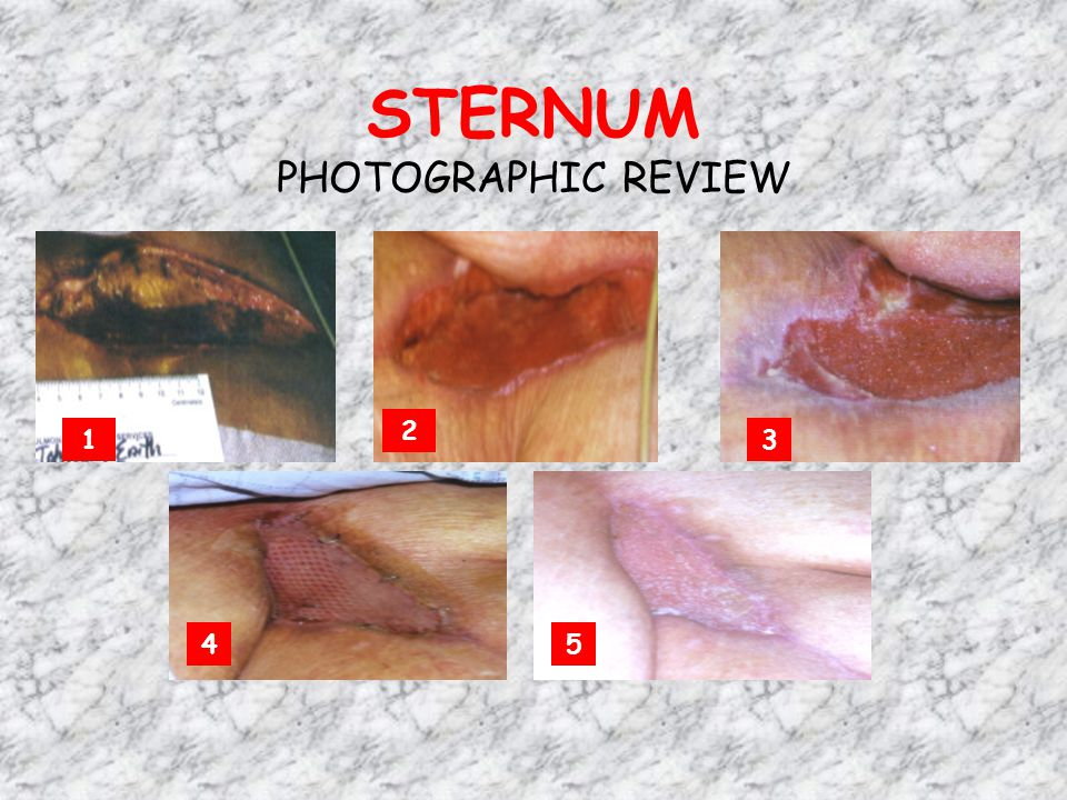 STERNUM PHOTOGRAPHIC REVIEW 13 2 45