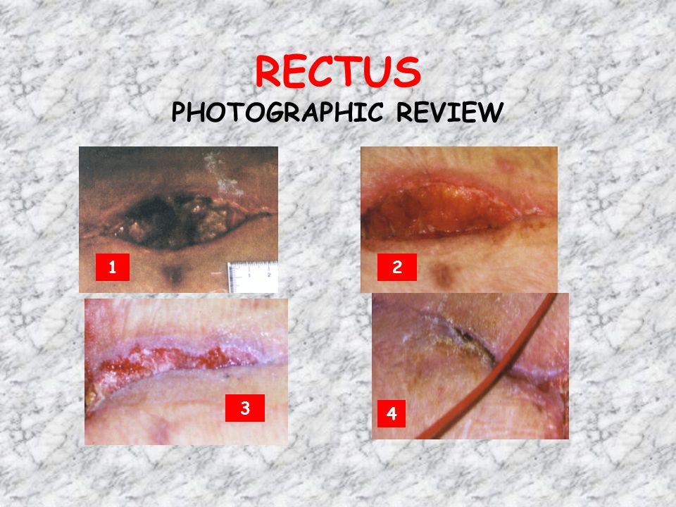 RECTUS PHOTOGRAPHIC REVIEW 12 3 4