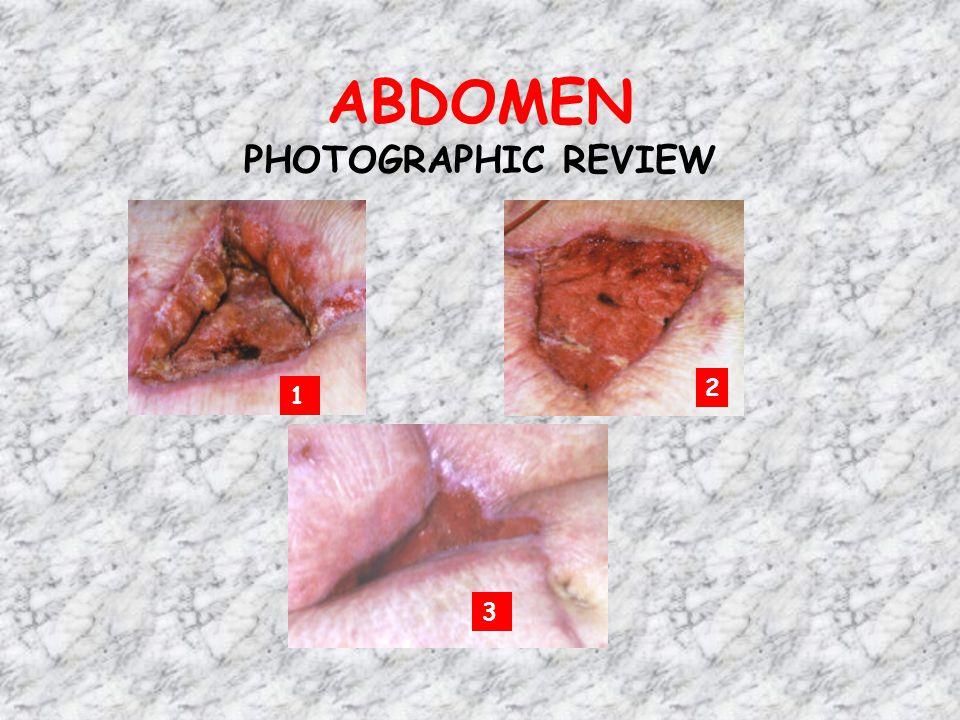 ABDOMEN PHOTOGRAPHIC REVIEW 1 2 3