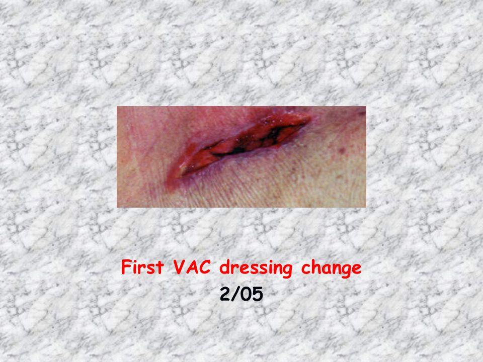 First VAC dressing change 2/05 ABDOMEN