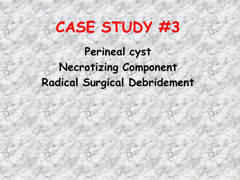 CASE STUDY #3 Perineal cyst Necrotizing Component Radical Surgical Debridement