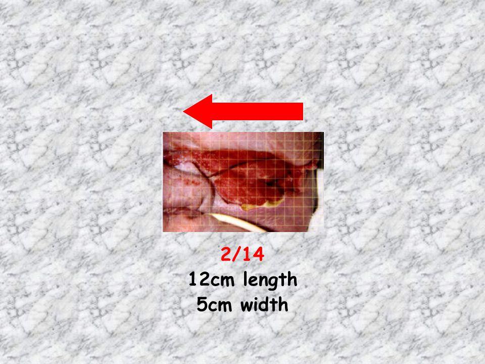 2/14 12cm length 5cm width