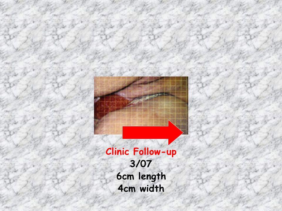Clinic Follow-up 3/07 6cm length 4cm width
