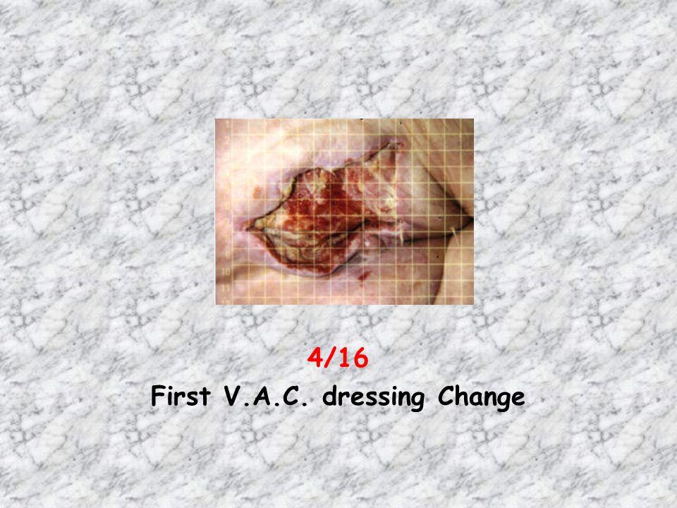 4/16 First V.A.C. dressing Change