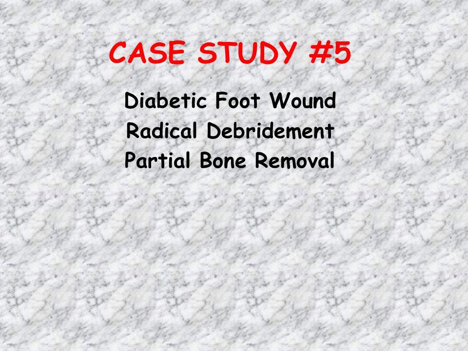 CASE STUDY #5 Diabetic Foot Wound Radical Debridement Partial Bone Removal