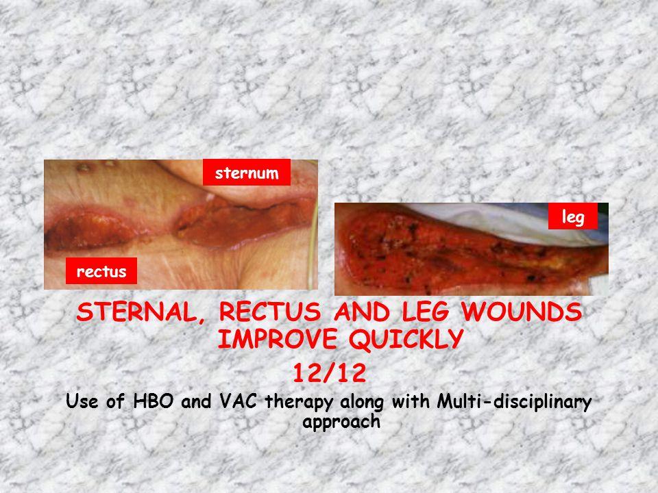 STERNUM AND LEG GRANULATE ABDOMINAL WOUND DEBRIDED 01/13 Abdominal wound measures 15x10x4cm leg abdomen rectus sternum