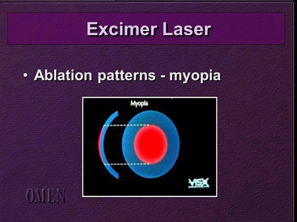 Ablation patterns - myopia Excimer Laser