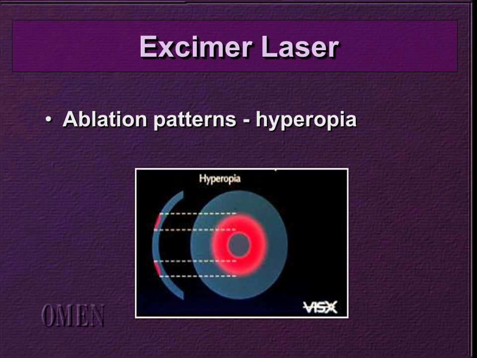 Ablation patterns - hyperopia Excimer Laser
