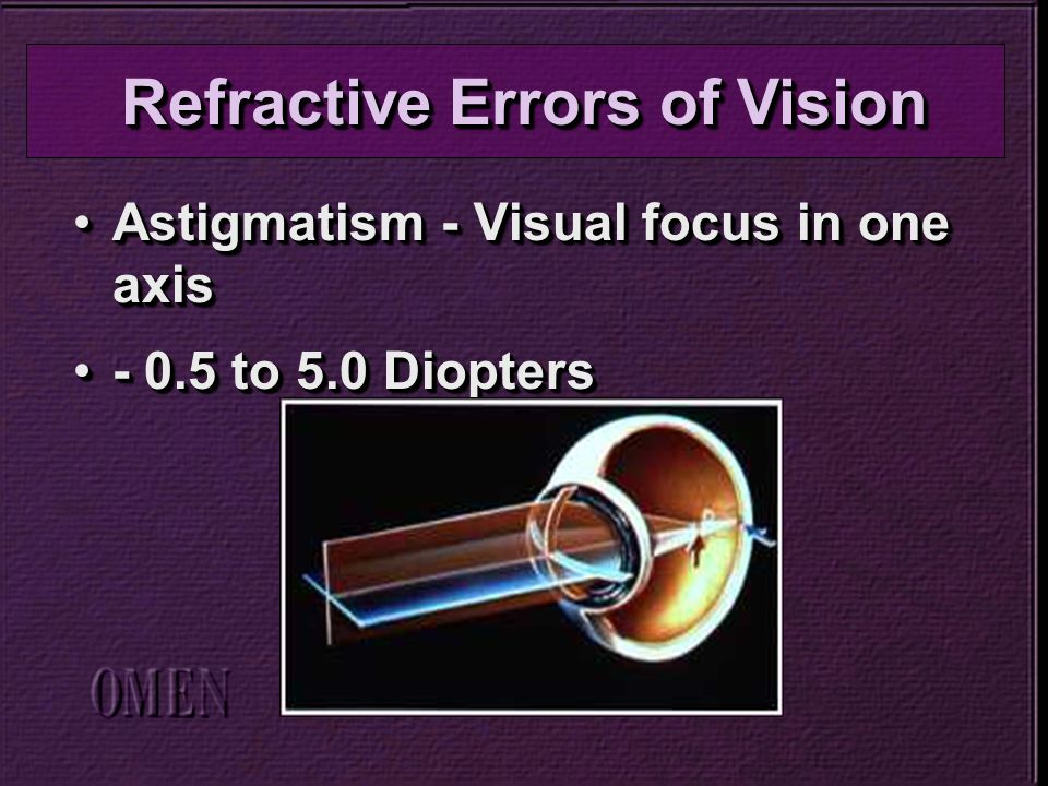 Astigmatism - Visual focus in one axisAstigmatism - Visual focus in one axis - 0.5 to 5.0 Diopters- 0.5 to 5.0 Diopters Astigmatism - Visual focus in one axisAstigmatism - Visual focus in one axis - 0.5 to 5.0 Diopters- 0.5 to 5.0 Diopters Refractive Errors of Vision