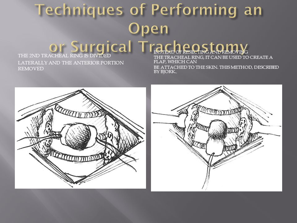 FIBEROPIC BRONCHOSCOPY IS USED TO HELP PLACE THE GUIDE WIRE CORRECTLY FOR PDT.