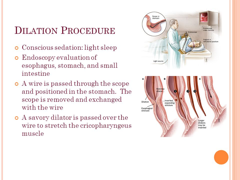 D ILATION P ROCEDURE Conscious sedation: light sleep Endoscopy evaluation of esophagus, stomach, and small intestine A wire is passed through the scope and positioned in the stomach.