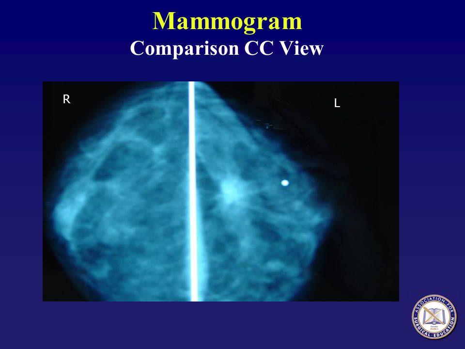 Mammogram Comparison CC View R L
