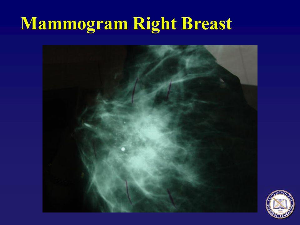 Mammogram Right Breast