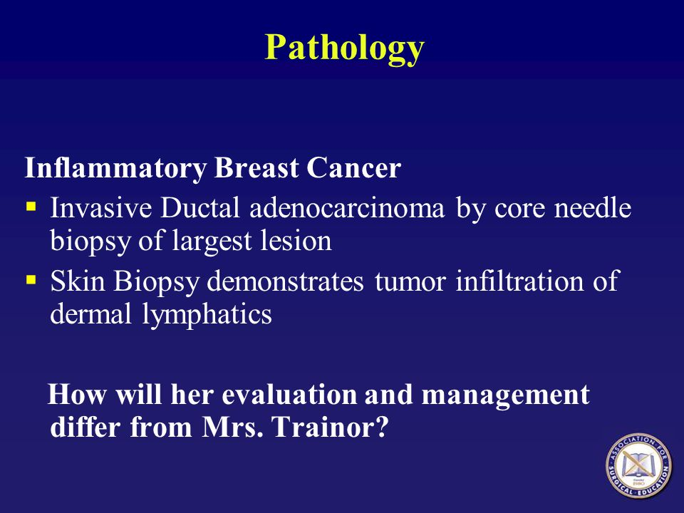 Pathology Inflammatory Breast Cancer  Invasive Ductal adenocarcinoma by core needle biopsy of largest lesion  Skin Biopsy demonstrates tumor infiltr