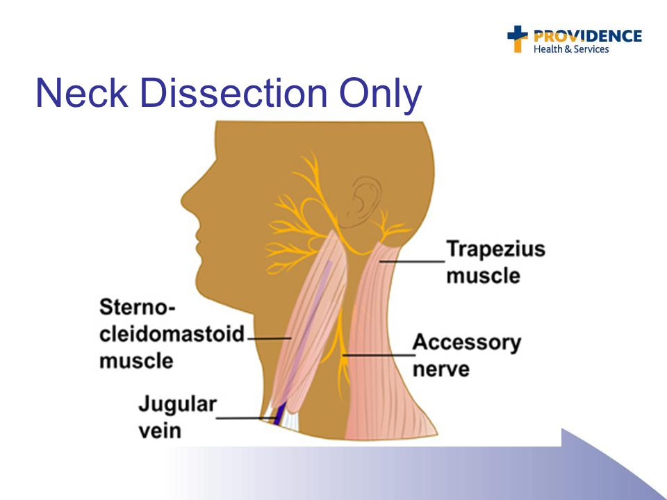 Neck Dissection Only