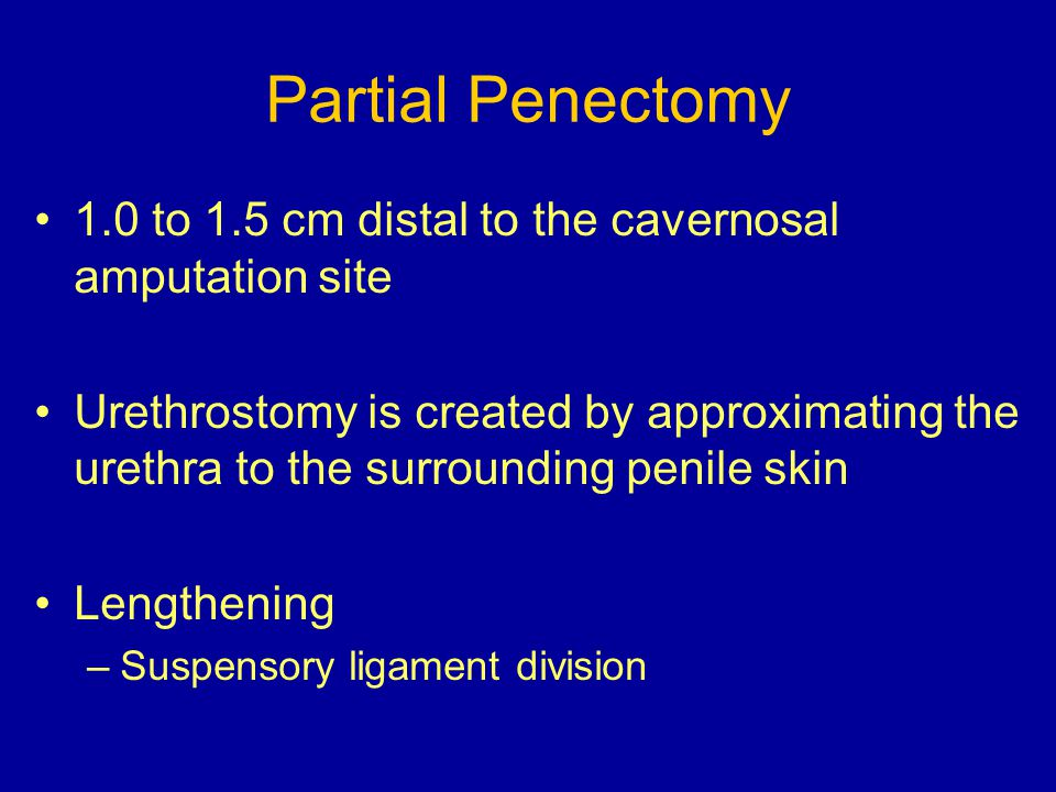 Partial Penectomy 1.0 to 1.5 cm distal to the cavernosal amputation site Urethrostomy is created by approximating the urethra to the surrounding penil