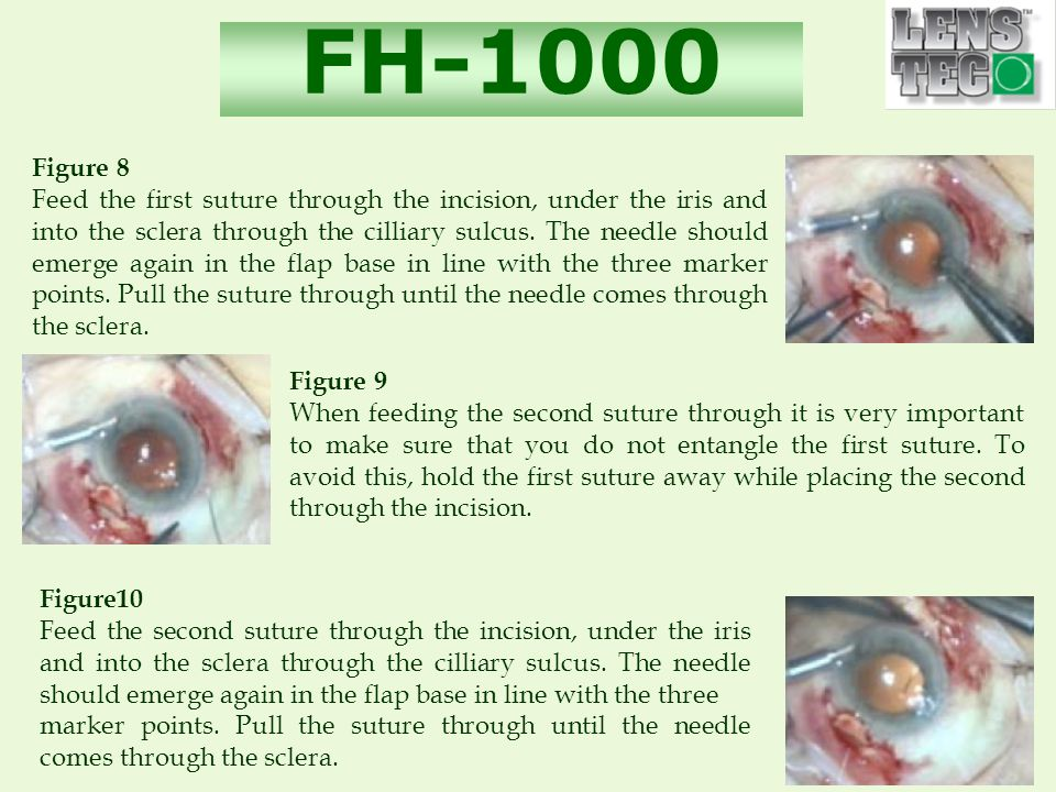 FH-1000 Figure 8 Feed the first suture through the incision, under the iris and into the sclera through the cilliary sulcus.