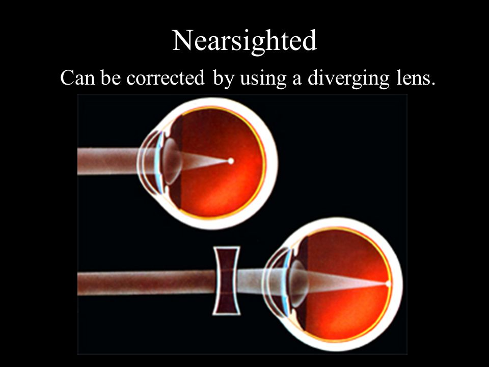 Nearsighted Can be corrected by using a diverging lens.