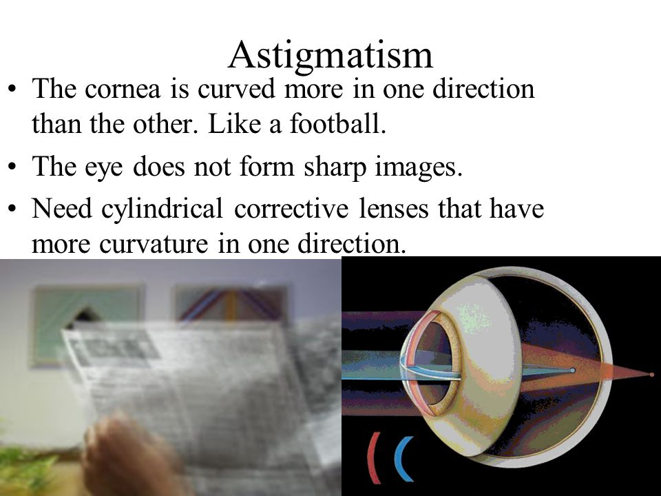 Astigmatism The cornea is curved more in one direction than the other.
