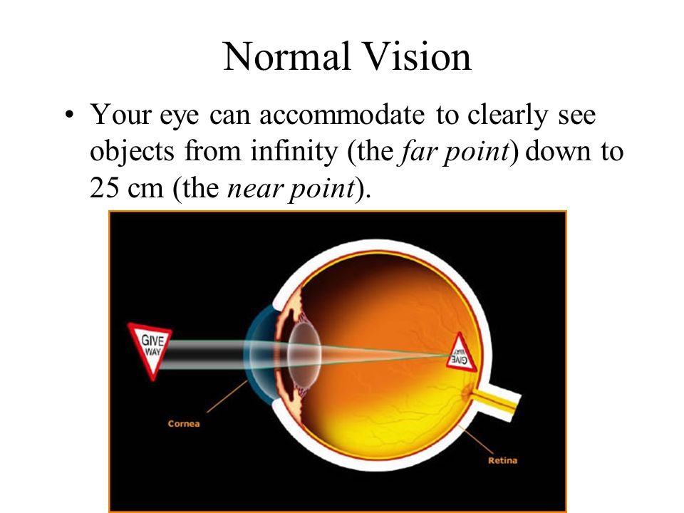 Normal Vision Your eye can accommodate to clearly see objects from infinity (the far point) down to 25 cm (the near point).