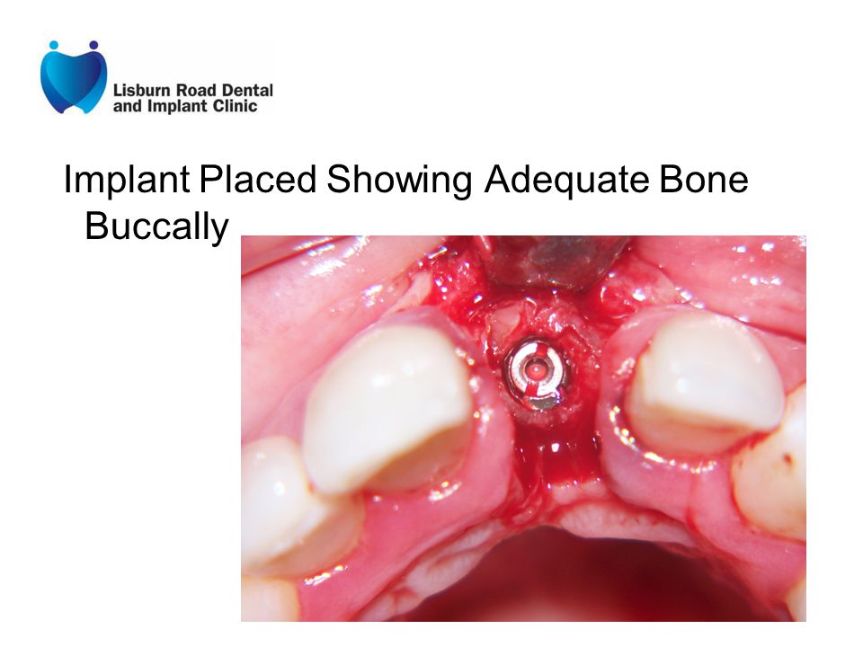 Implant Placed Showing Adequate Bone Buccally