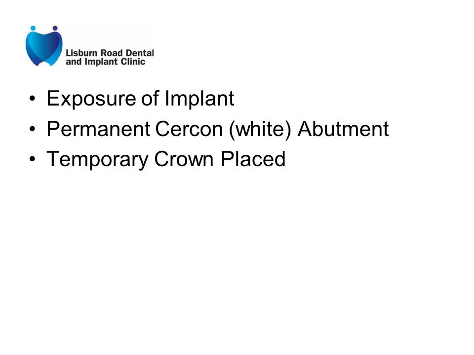 Exposure of Implant Permanent Cercon (white) Abutment Temporary Crown Placed