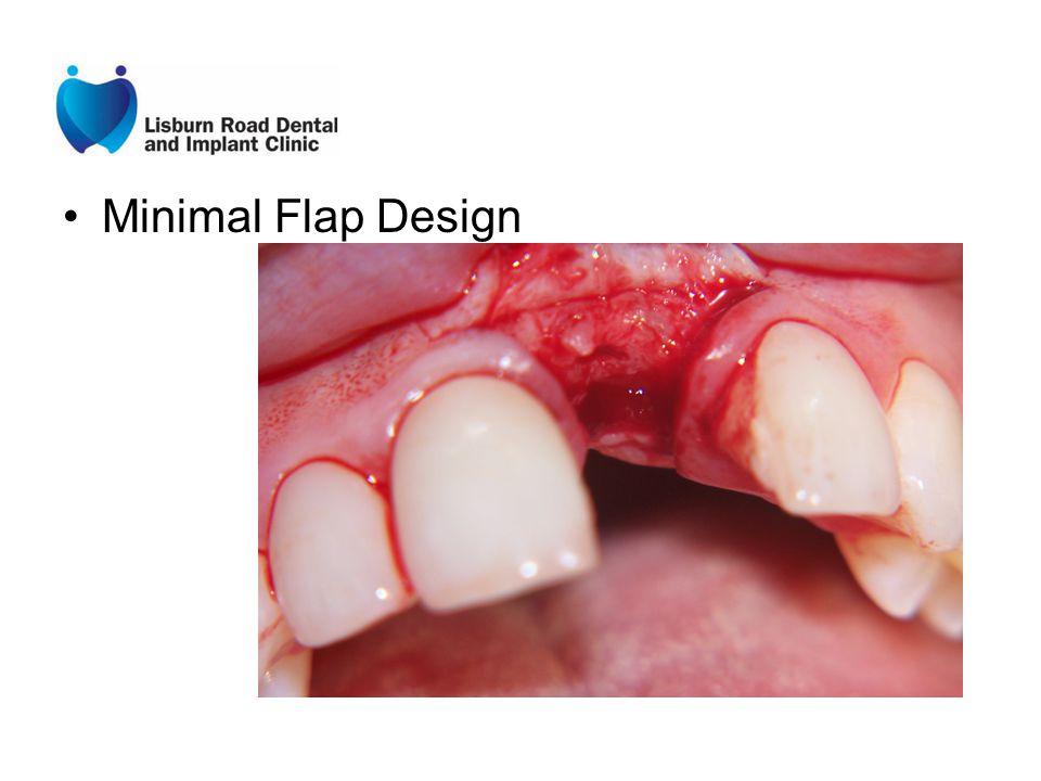 Minimal Flap Design