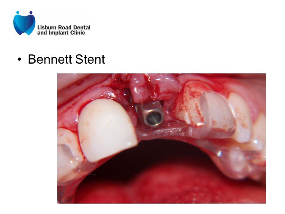 Bennett Stent