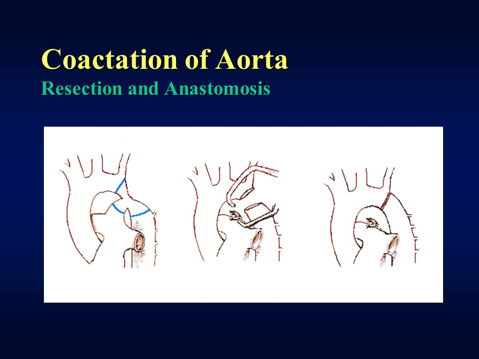 Coactation of Aorta Resection and Anastomosis