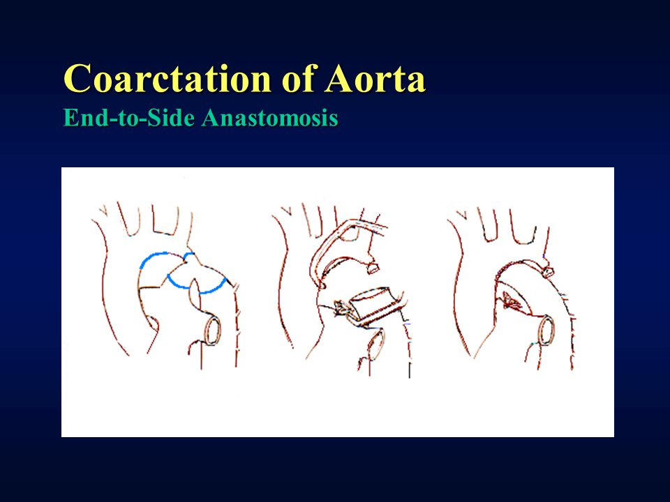 Coarctation of Aorta End-to-Side Anastomosis
