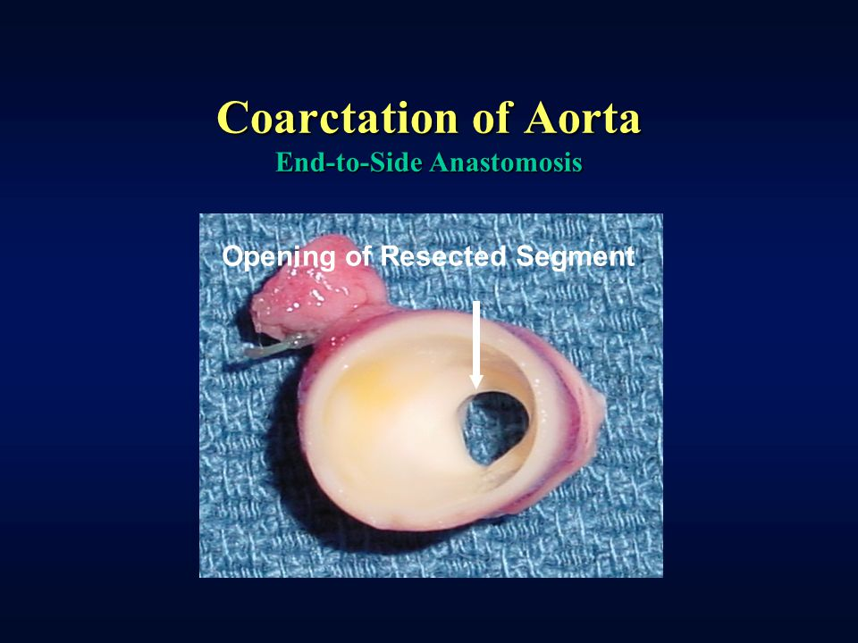 Coarctation of Aorta End-to-Side Anastomosis Opening of Resected Segment