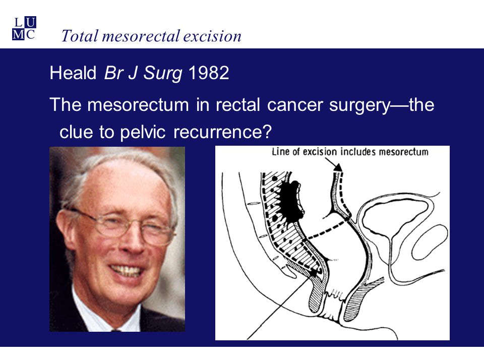 Total mesorectal excision Heald Br J Surg 1982 The mesorectum in rectal cancer surgery—the clue to pelvic recurrence?