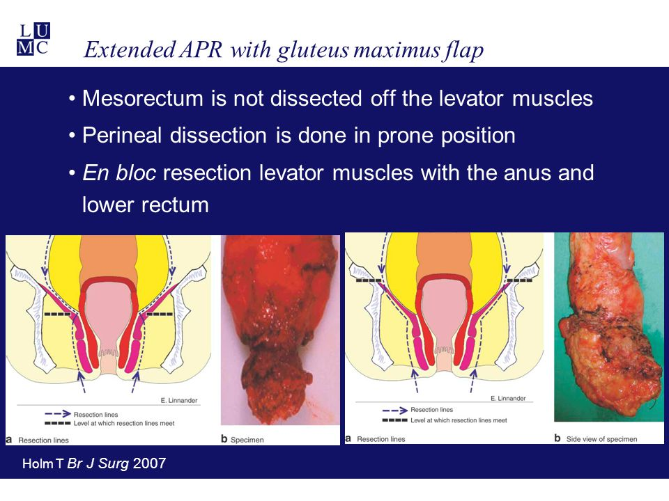 Extended APR with gluteus maximus flap Mesorectum is not dissected off the levator muscles Perineal dissection is done in prone position En bloc resec