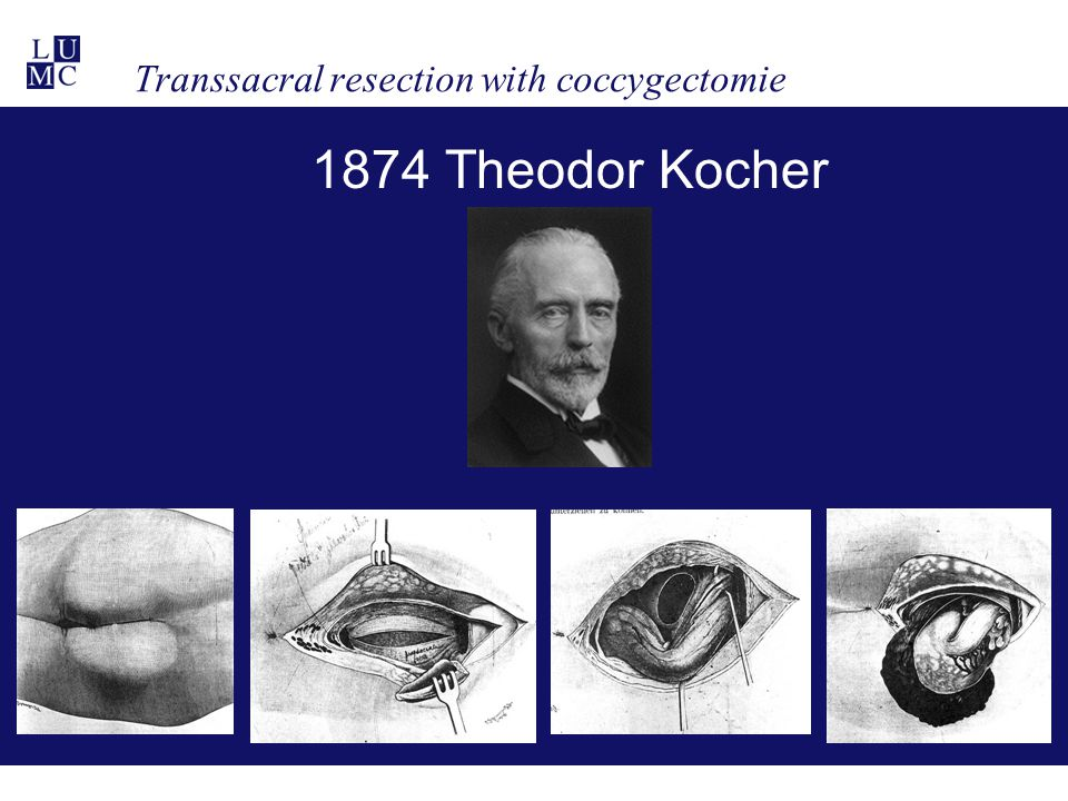 Transsacral resection with coccygectomie 1874 Theodor Kocher
