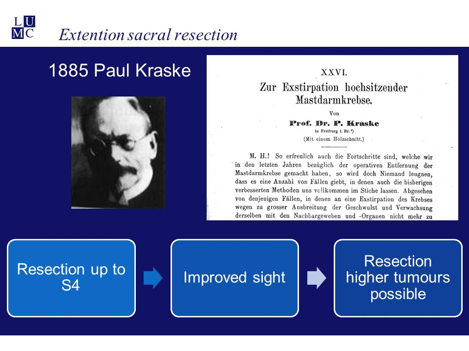 Extention sacral resection 1885 Paul Kraske Resection up to S4 Improved sight Resection higher tumours possible