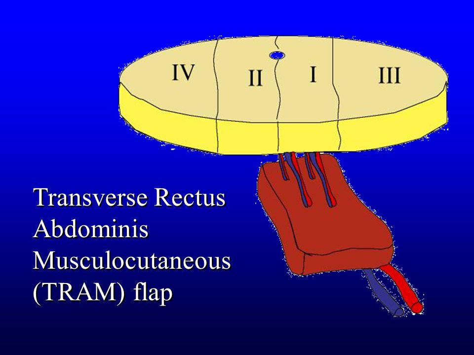 Transverse Rectus Abdominis Musculocutaneous (TRAM) flap