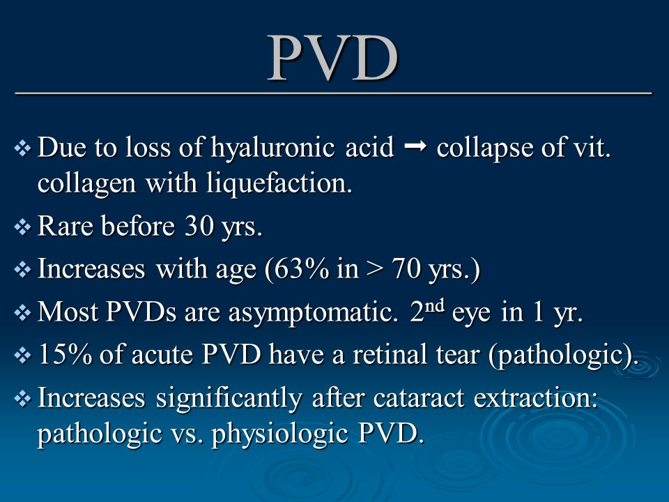 PVD _______________________________  Due to loss of hyaluronic acid  collapse of vit.