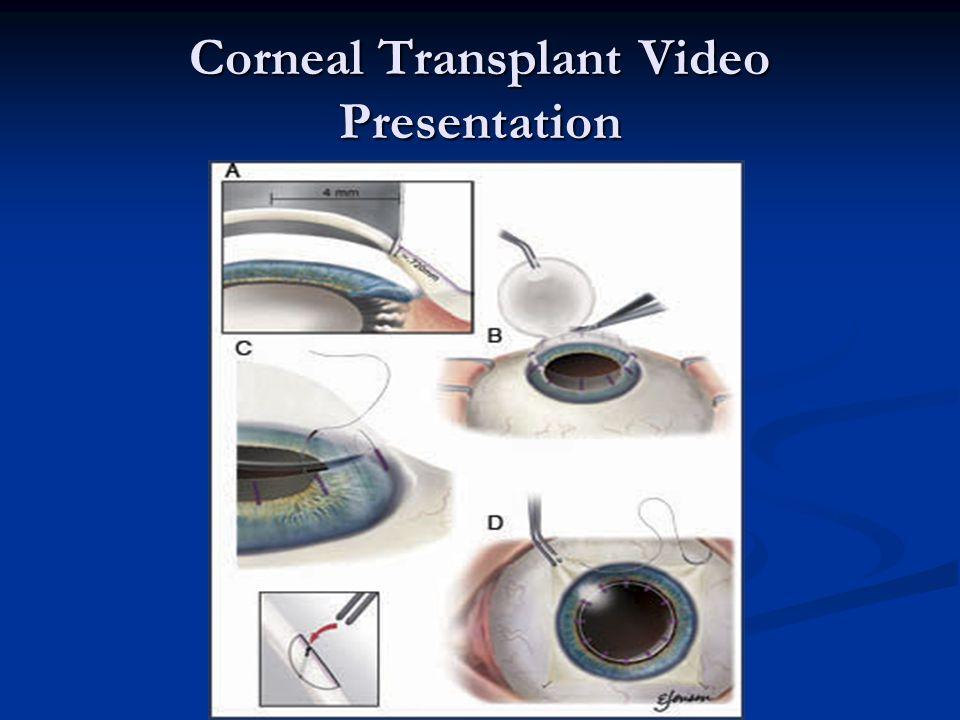 Corneal Transplant Video Presentation