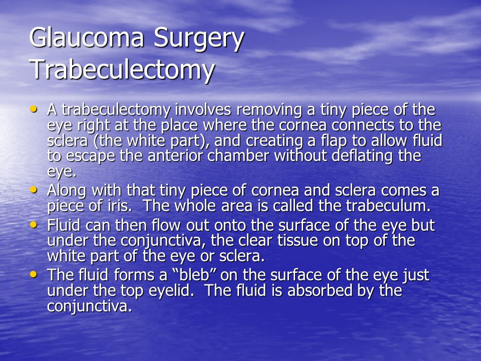 Glaucoma Surgery Trabeculectomy A trabeculectomy involves removing a tiny piece of the eye right at the place where the cornea connects to the sclera (the white part), and creating a flap to allow fluid to escape the anterior chamber without deflating the eye.