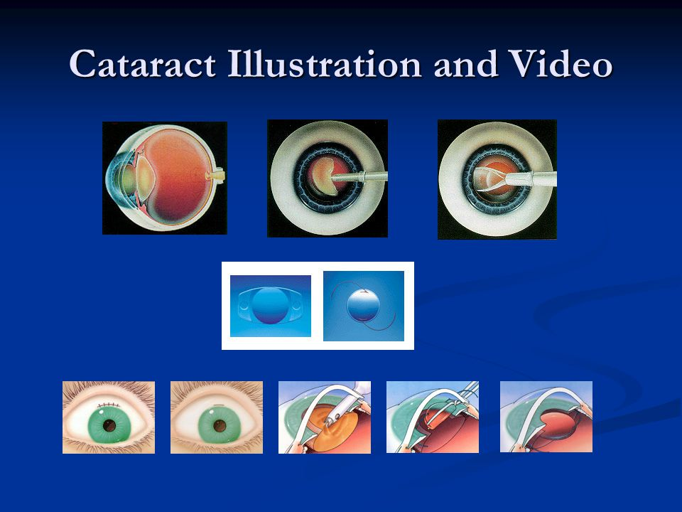Cataract Illustration and Video