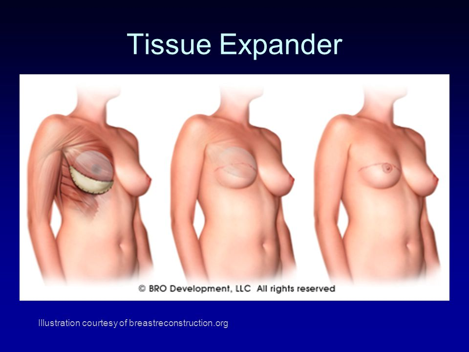 Illustration courtesy of breastreconstruction.org Tissue Expander