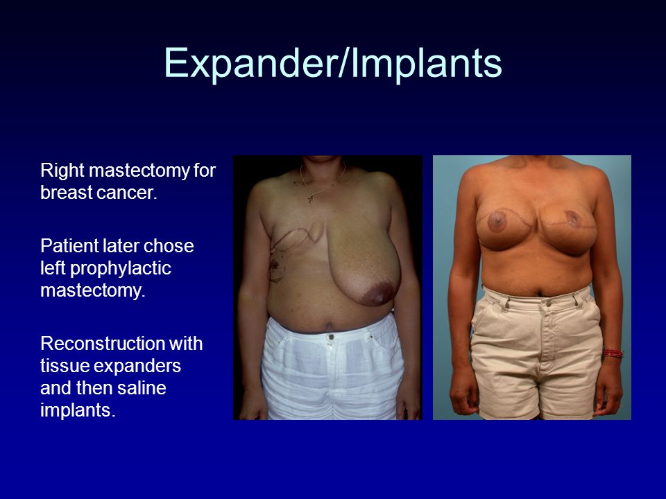 Expander/Implants Right mastectomy for breast cancer.