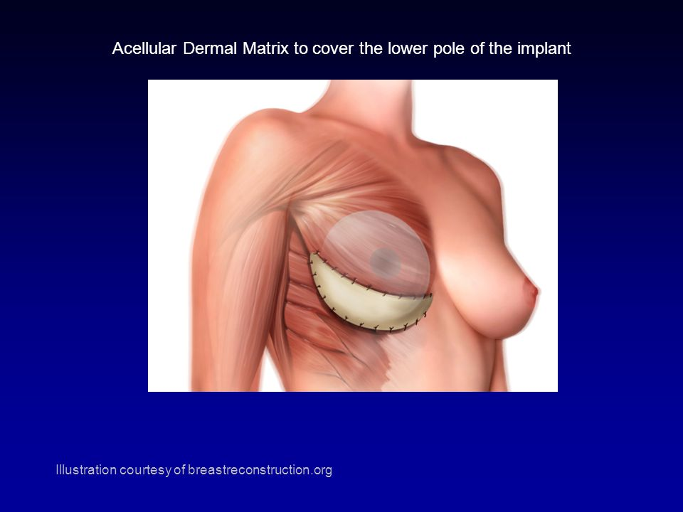 AlloDerm placement Acellular Dermal Matrix to cover the lower pole of the implant Illustration courtesy of breastreconstruction.org