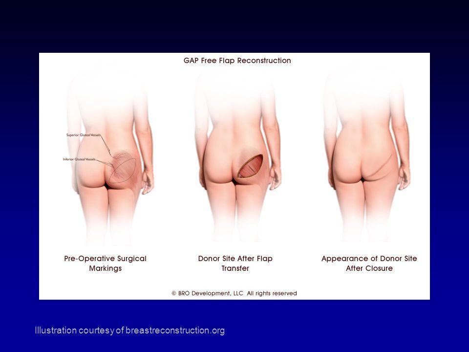 SGAP Illustration courtesy of breastreconstruction.org
