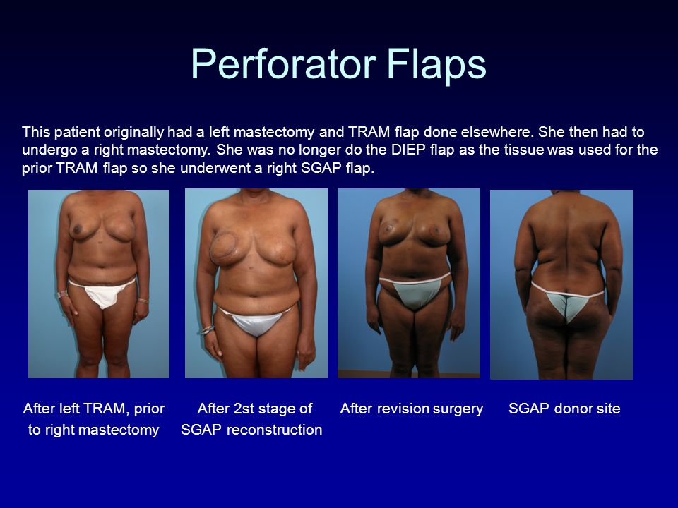 Perforator Flaps This patient originally had a left mastectomy and TRAM flap done elsewhere.