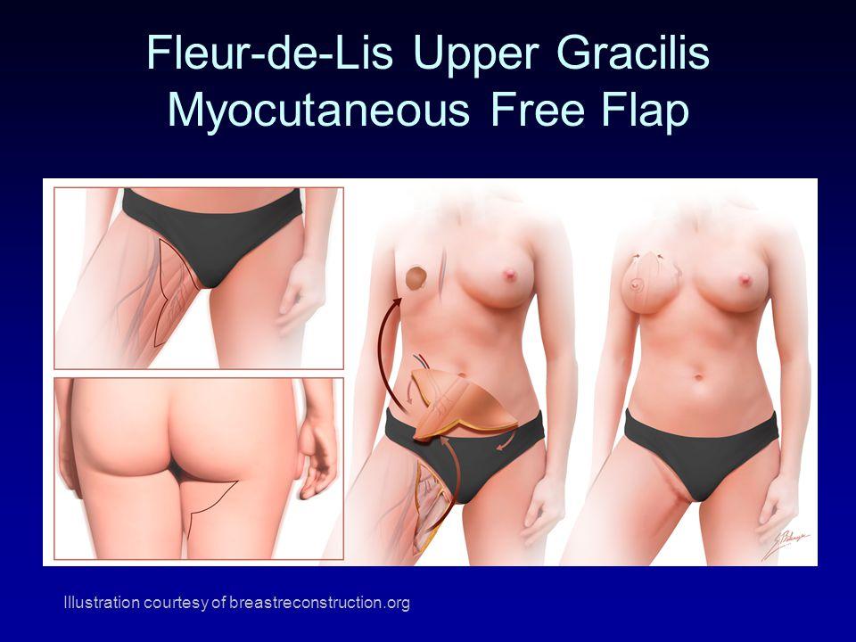 Fleur-de-Lis Upper Gracilis Myocutaneous Free Flap Illustration courtesy of breastreconstruction.org