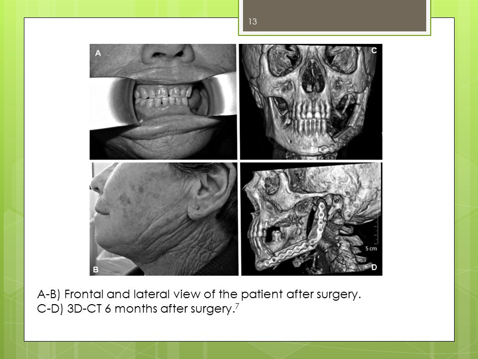 A-B) Frontal and lateral view of the patient after surgery. C-D) 3D-CT 6 months after surgery. 7 13