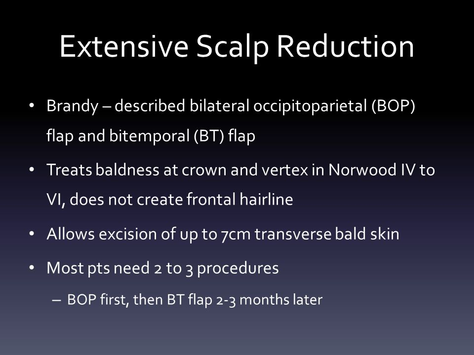Extensive Scalp Reduction Brandy – described bilateral occipitoparietal (BOP) flap and bitemporal (BT) flap Treats baldness at crown and vertex in Norwood IV to VI, does not create frontal hairline Allows excision of up to 7cm transverse bald skin Most pts need 2 to 3 procedures – BOP first, then BT flap 2-3 months later