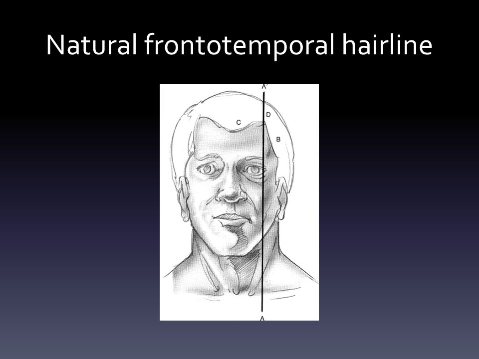 Natural frontotemporal hairline